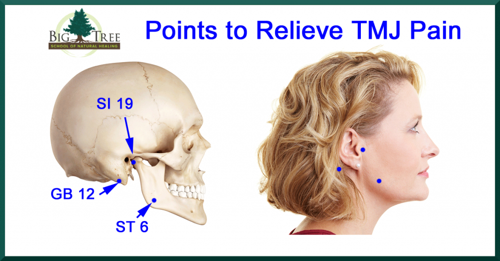 Points to relieve TMJ