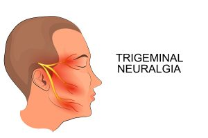 Trigeminal neuralgia pain along branches of the trigeminal nerve.