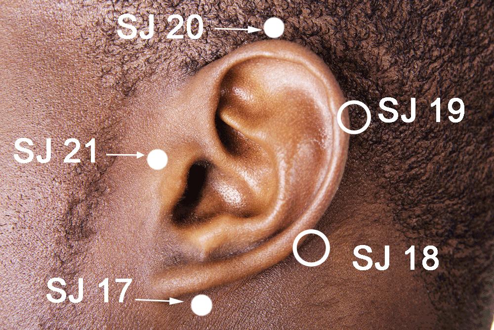 San Jiao points around the ear.