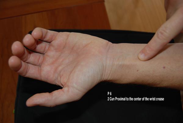 applying pressure to Pericardium 6
