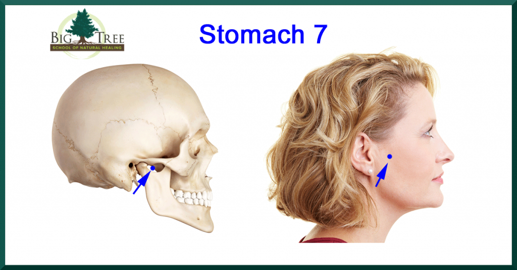 Stomach 7 to relieve TMJ