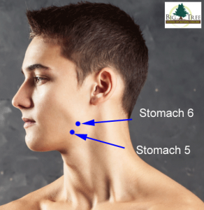 Stomach 5 and Stomach 6 Acupressure Points on the Jaw ...