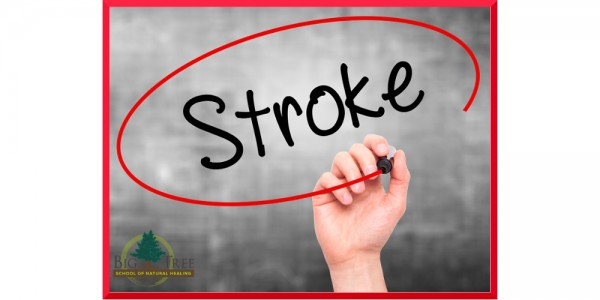 Using acupuncture for stroke recovery