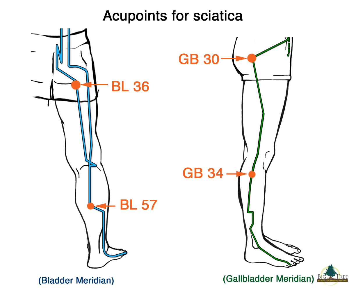 4 Great points for sciatica relief